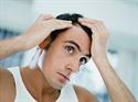 Εικόνα για την κατηγορία Μεταμόσχευση μαλλιών